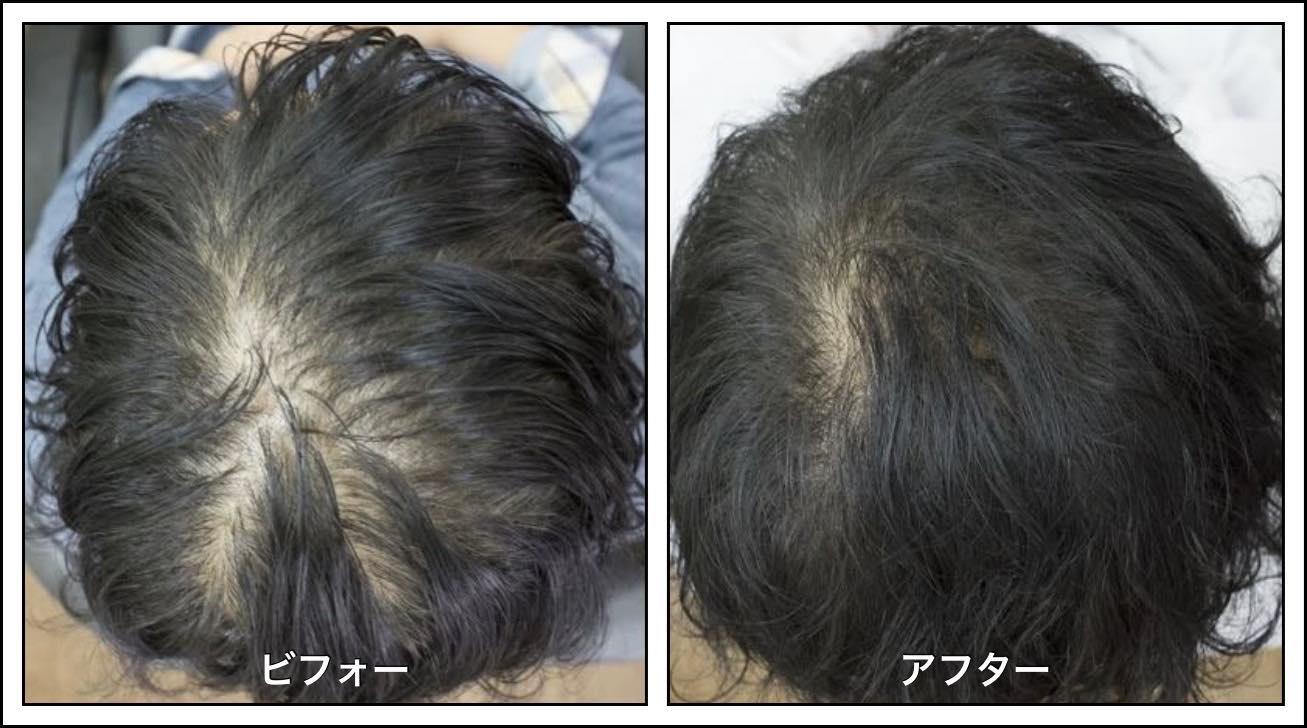 【継続は力なり】抜け毛を抑えて髪を増やす事